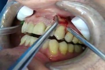 Un dentiste filme son opération sur un patient atteint d'un abcès dentaire !
