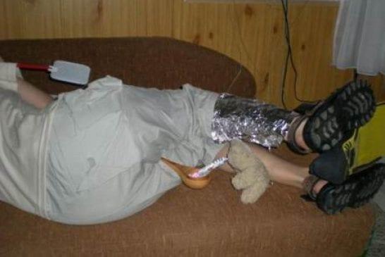 Une jambe de fer dans un corps alcoolisé