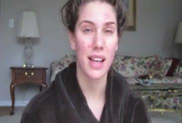 Comment cacher de gros boutons avec du maquillage