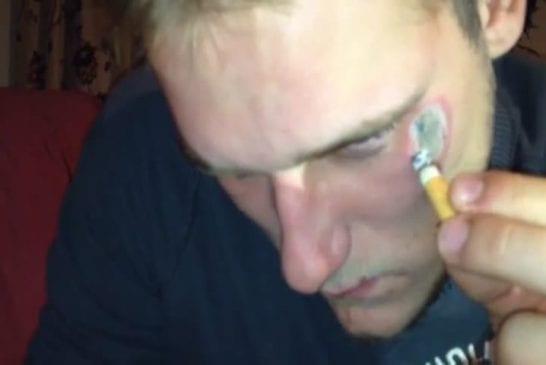 Retirer un tatouage avec une fourchette chaude